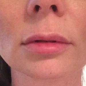 lips before 2